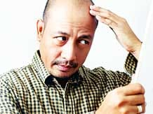 Win the Fight against Hair Loss