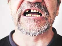 Home Remedies to relieve Toothache