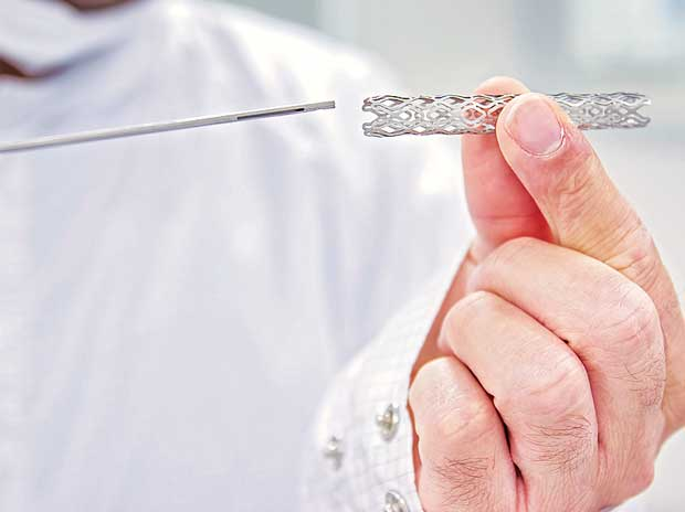 Industry opposes move to control stent prices
