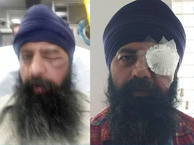 41-year-old Sikh-American IT specialist Maan Singh Khalsa was brutally assaulted in alleged hate crime is US. (Photo: Facebook/The Sikh Coalition)