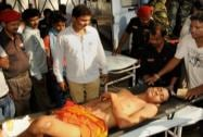An injured devotee is bought to RIMS in Ranchi