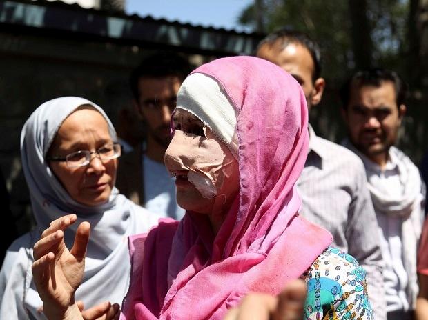Kabul Blast, Indian Embassy, truck, bomb blast, victims, Afghanistan blast, blast near Indian Embassy, Sushma Swaraj, Narendra Modi, suicide blast, Kabul