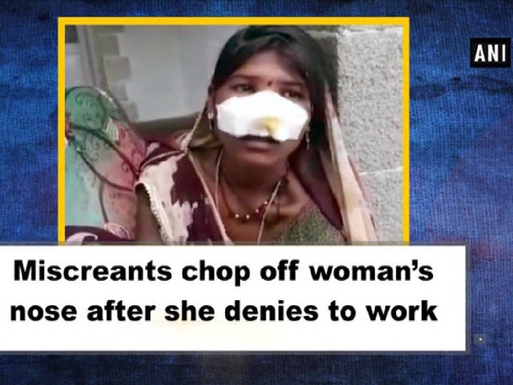 Miscreants chop off woman's nose after she denies to work