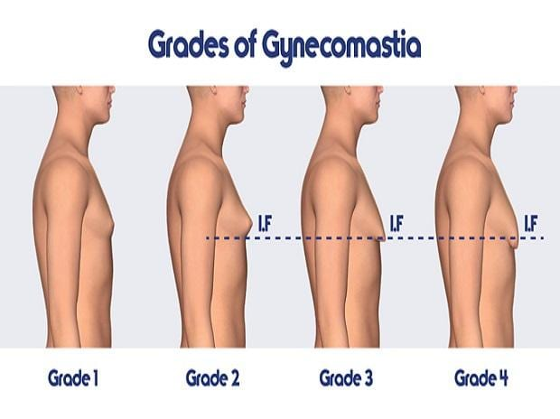 Gynecomastia Alert Do S And Don Ts Before Male Breast Reduction