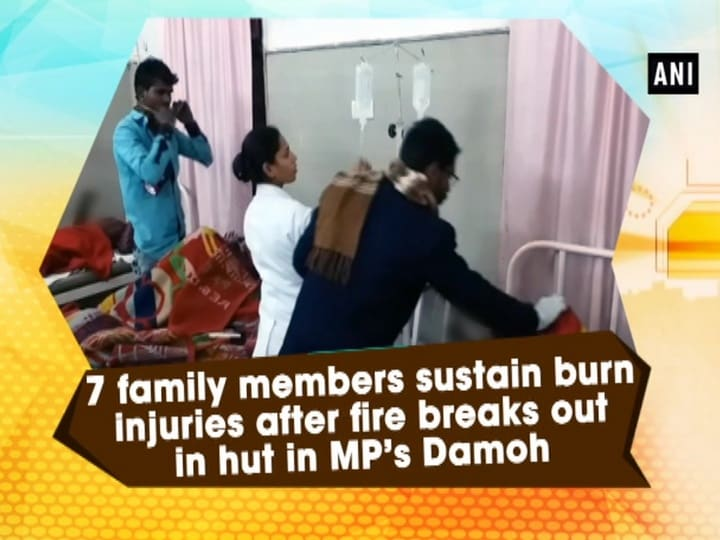 7 family members sustain burn injuries after fire breaks out in hut in MP's Damoh