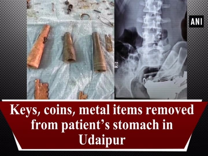 Keys, coins, metal items removed from patient's stomach in Udaipur