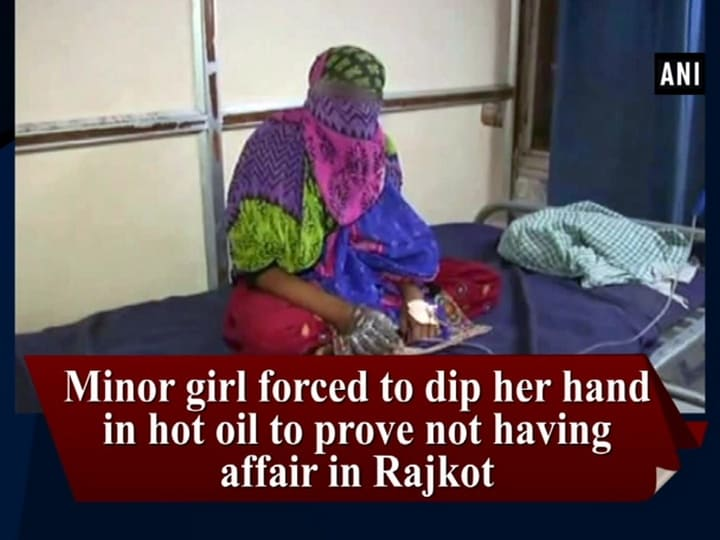 Minor girl forced to dip her hand in hot oil to prove not having affair in Rajkot