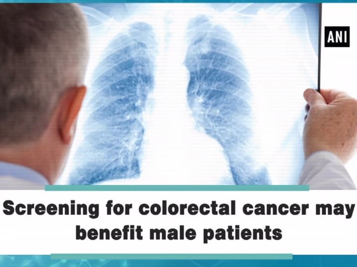 Screening for colorectal cancer may benefit male patients