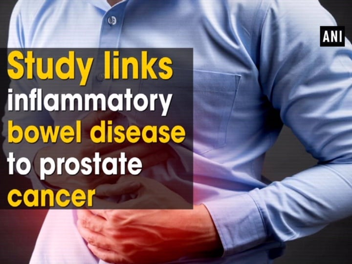 Study links inflammatory bowel disease to prostate cancer
