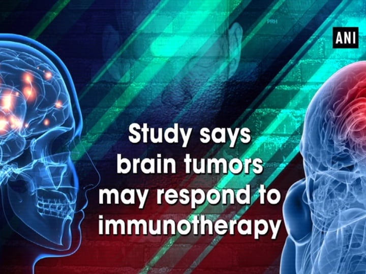 Study says brain tumors may respond to immunotherapy