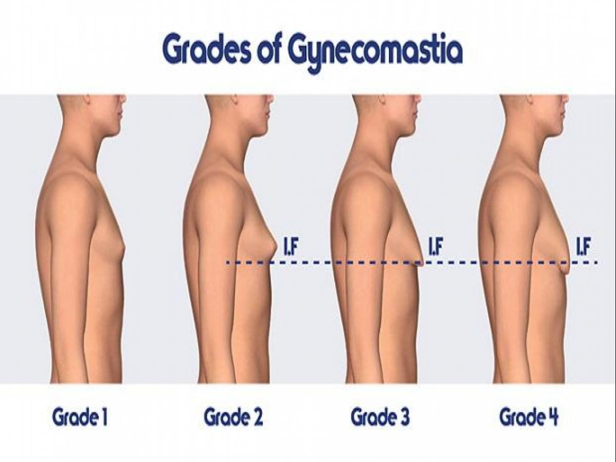 Gynecomastia Alert Do S And Don Ts Before Male Breast Reduction Surgery Business Standard News